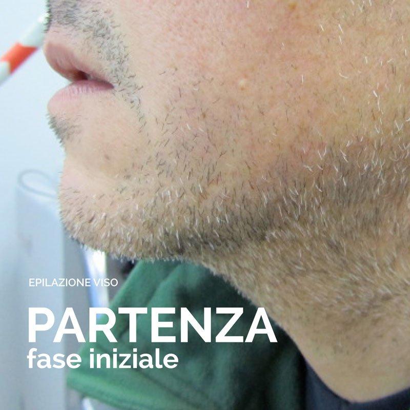 Epilazione laser viso inizio trattamento